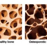 How Healthy Art Your Bones? A Painting Concept