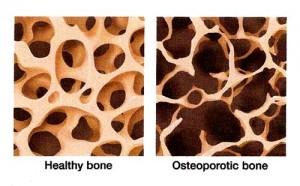 healthy bones art